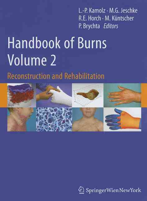 Handbook of Burns By Wien, Lars-peter Kamolz (EDT)